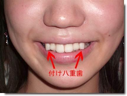 Yaeba dentes tortos moda no japo curiosidades do japo yaeba dentes tortos moda no japo altavistaventures Image collections