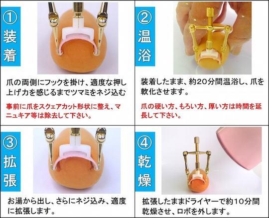 makizume-robo-ingrown-toenail-fixer-straightener-2